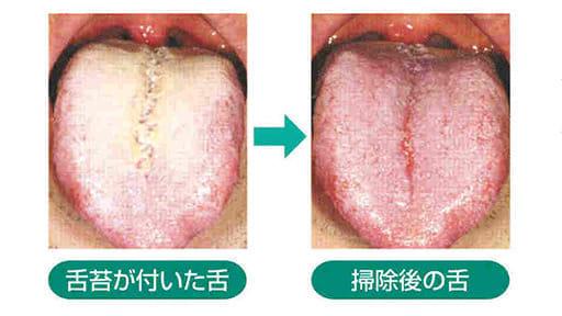 「健口」で健康(15)舌掃除 口臭や病気防ぐ