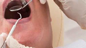 歯ぐきの中に残った根っこが12本!? 80代認知症の父…医師は「誤嚥予防のため、抜きましょう」と言うけれど