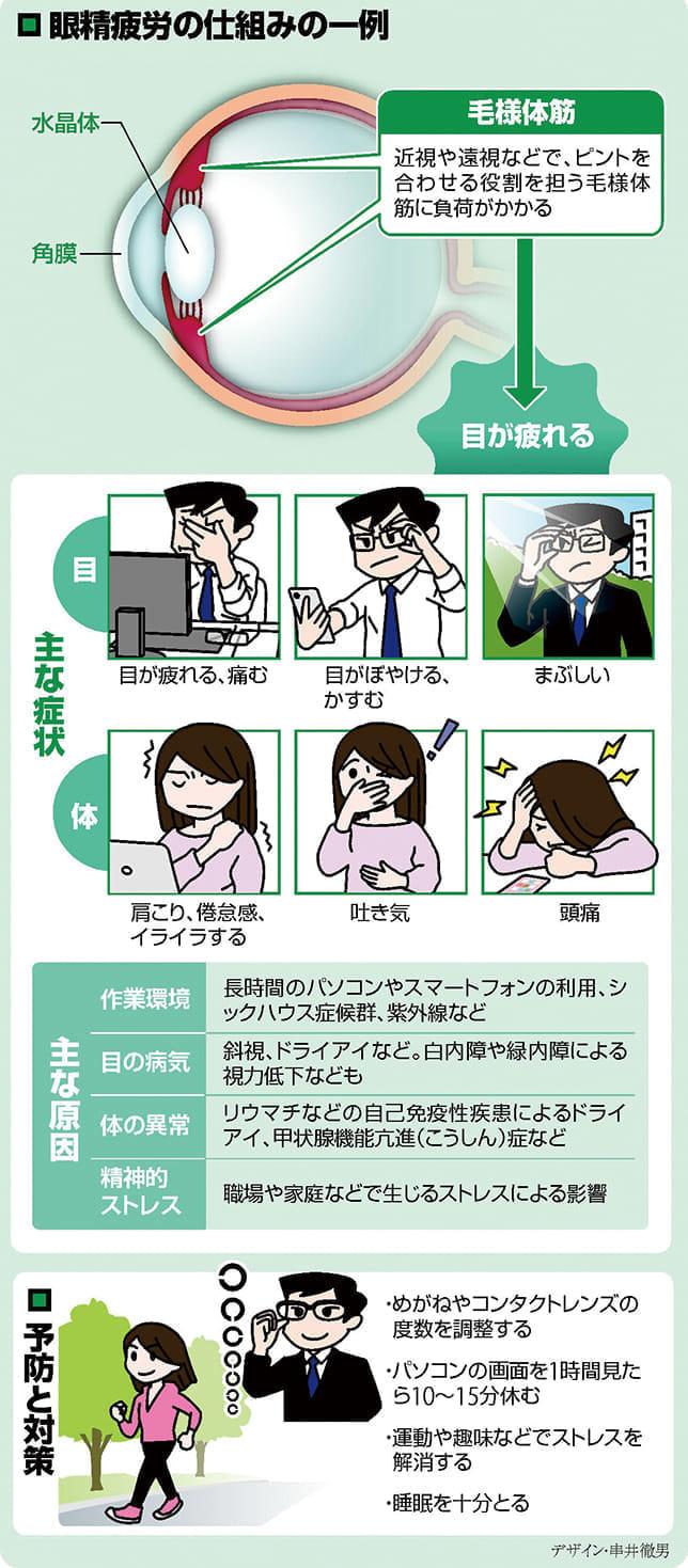 眼精疲労 頭痛や吐き気の原因にも…ストレス発散・睡眠を