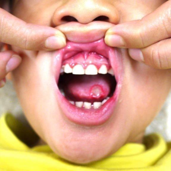 舌の先に大きなアフタ性口内炎が確認できます