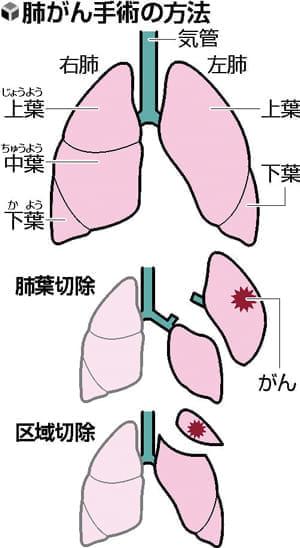 肺がん区域切除 高度な技術
