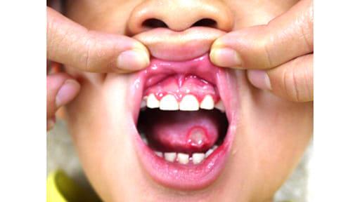 口内炎で食べられず、やせてしまった! 呼吸を変えたら…