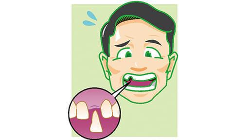 「健口」で健康(18)抜けた歯 元の位置に戻せる