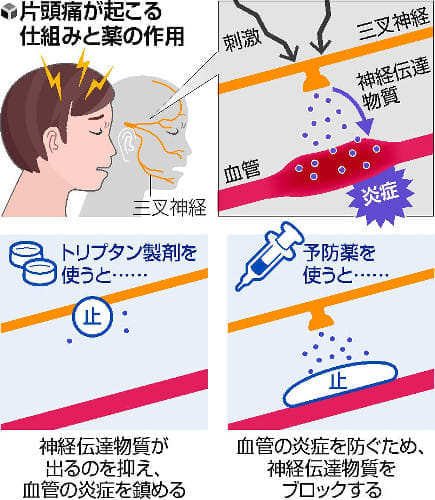 予防 偏 薬 頭痛