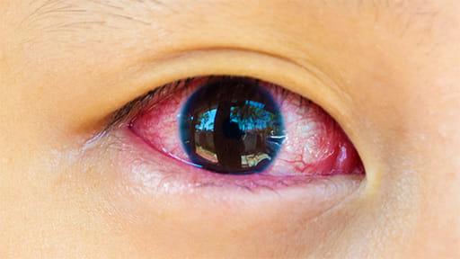 結膜炎…ウイルス性 夏場に多く