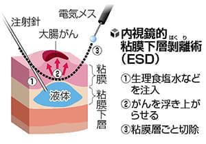 大腸がん治療 腹腔鏡が主流