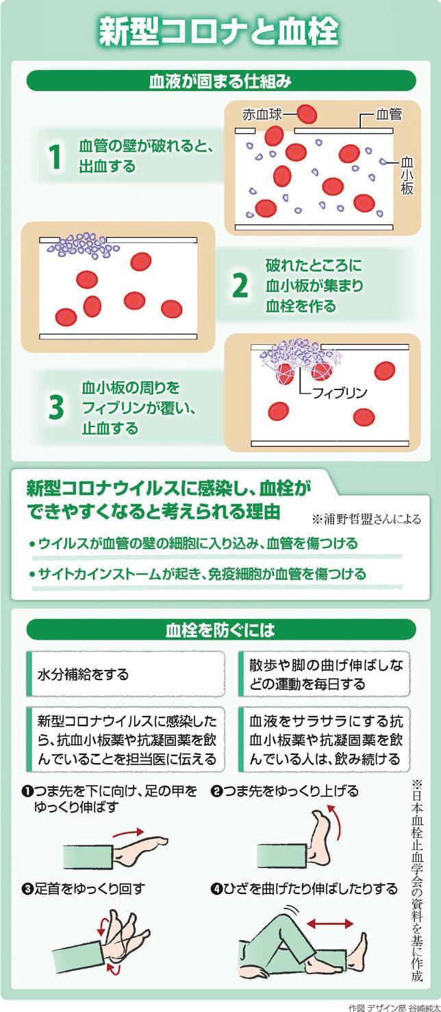 コロナ感染すると血栓できやすく…水分補給と運動で予防