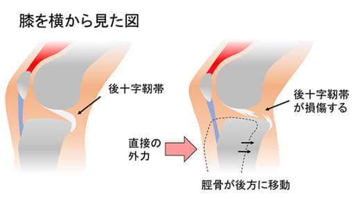 膝の後十字靭帯損傷とは