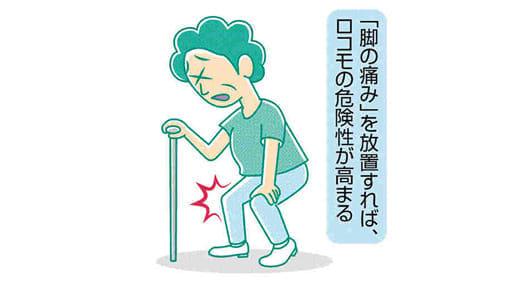 脚の痛み(1)ロコモ 筋力低下で転倒も