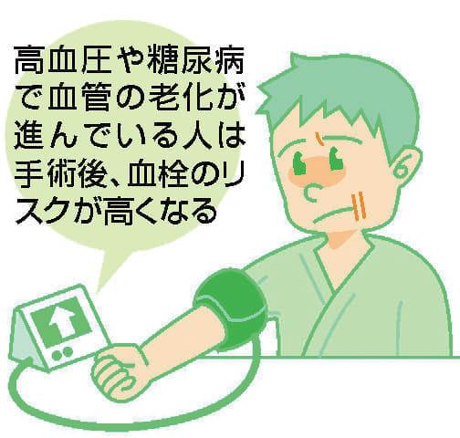 脚の痛み(4)人工股関節手術 血栓に注意
