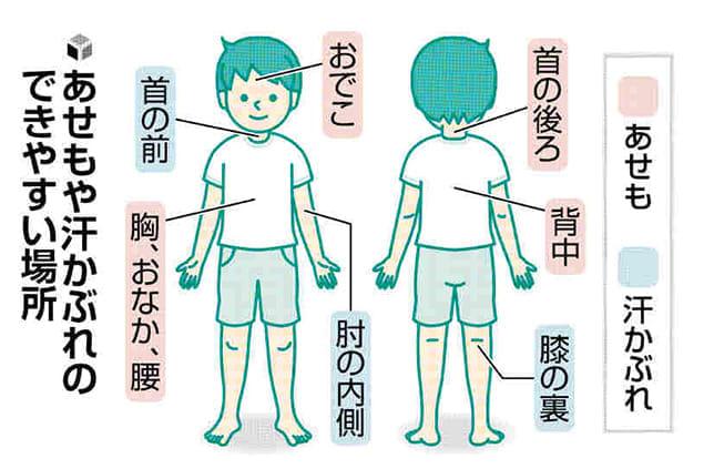 皮膚のトラブル(2)「赤いあせも」は薬で治療