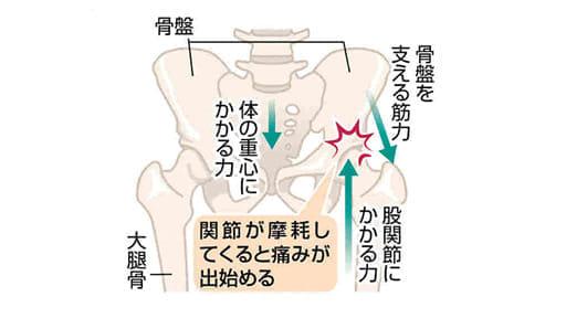 脚の痛み(3)変形性股関節症 悪化なら手術も