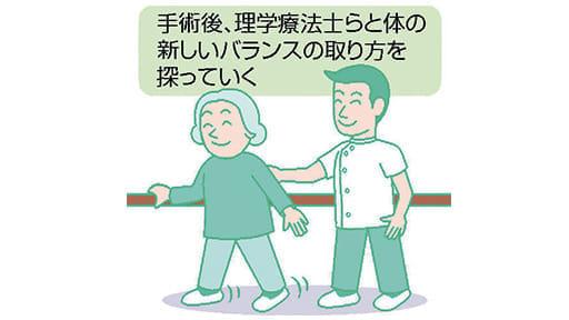 脚の痛み(5)体の新しいバランス 探って
