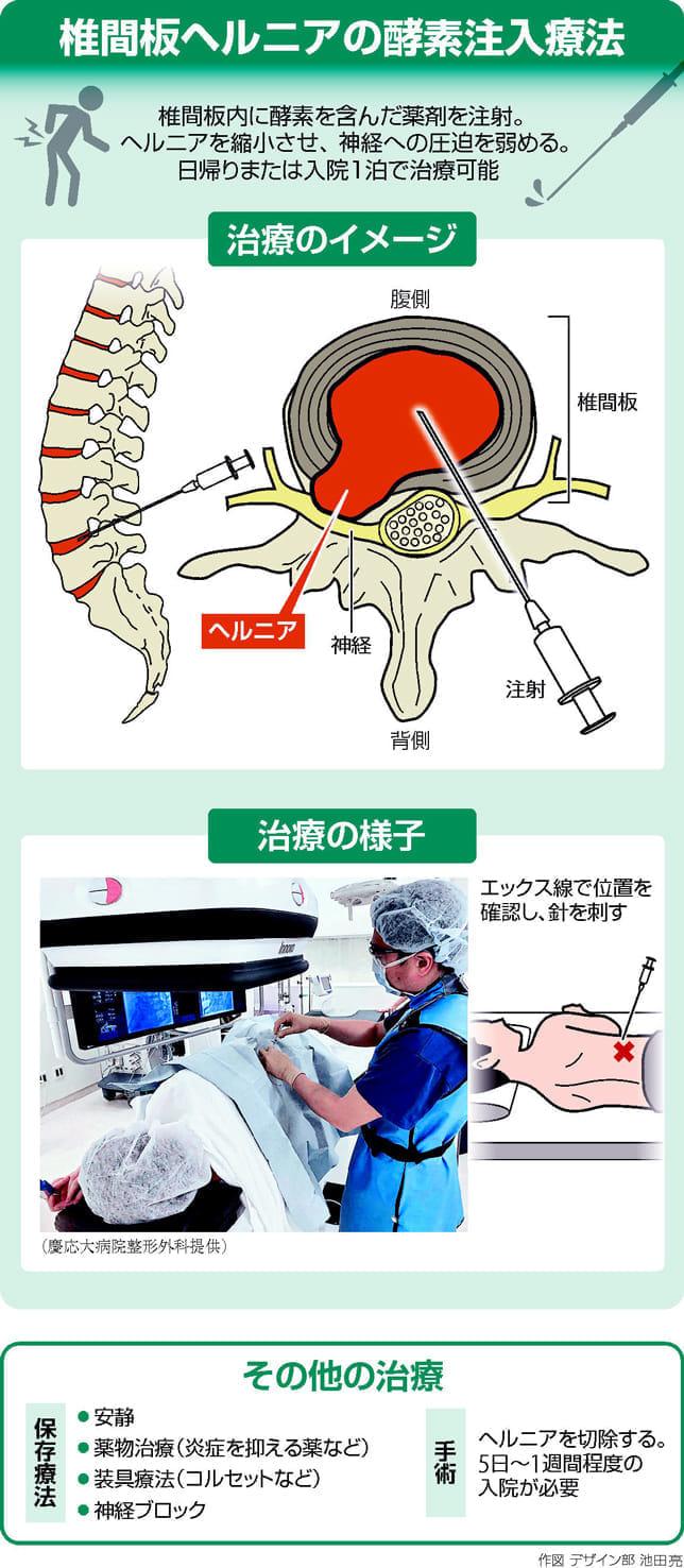 椎間板内酵素注入療法…注射でヘルニア縮小