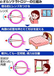 近視のいま<3>睡眠中 角膜の形整える