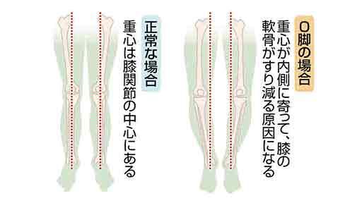 脚の痛み(6)膝関節の軟骨すり減り炎症