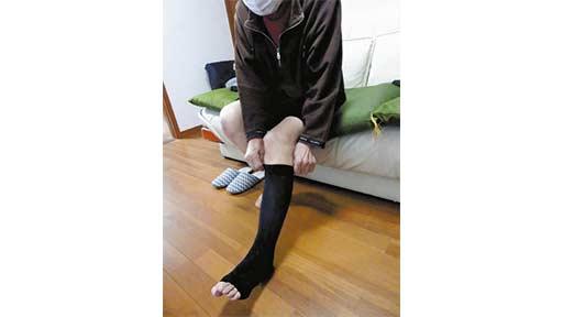 下肢静脈瘤<3>ストッキング正しく着用
