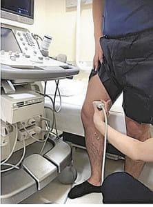 下肢静脈瘤<4>手術 よく考えて判断を