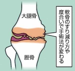 脚の痛み(7)手術法 軟骨の状態で選択