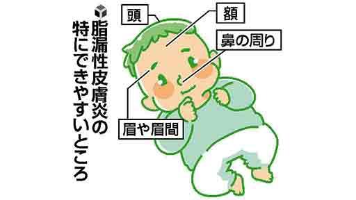 皮膚のトラブル(5)乳児の湿疹 大半は自然軽快