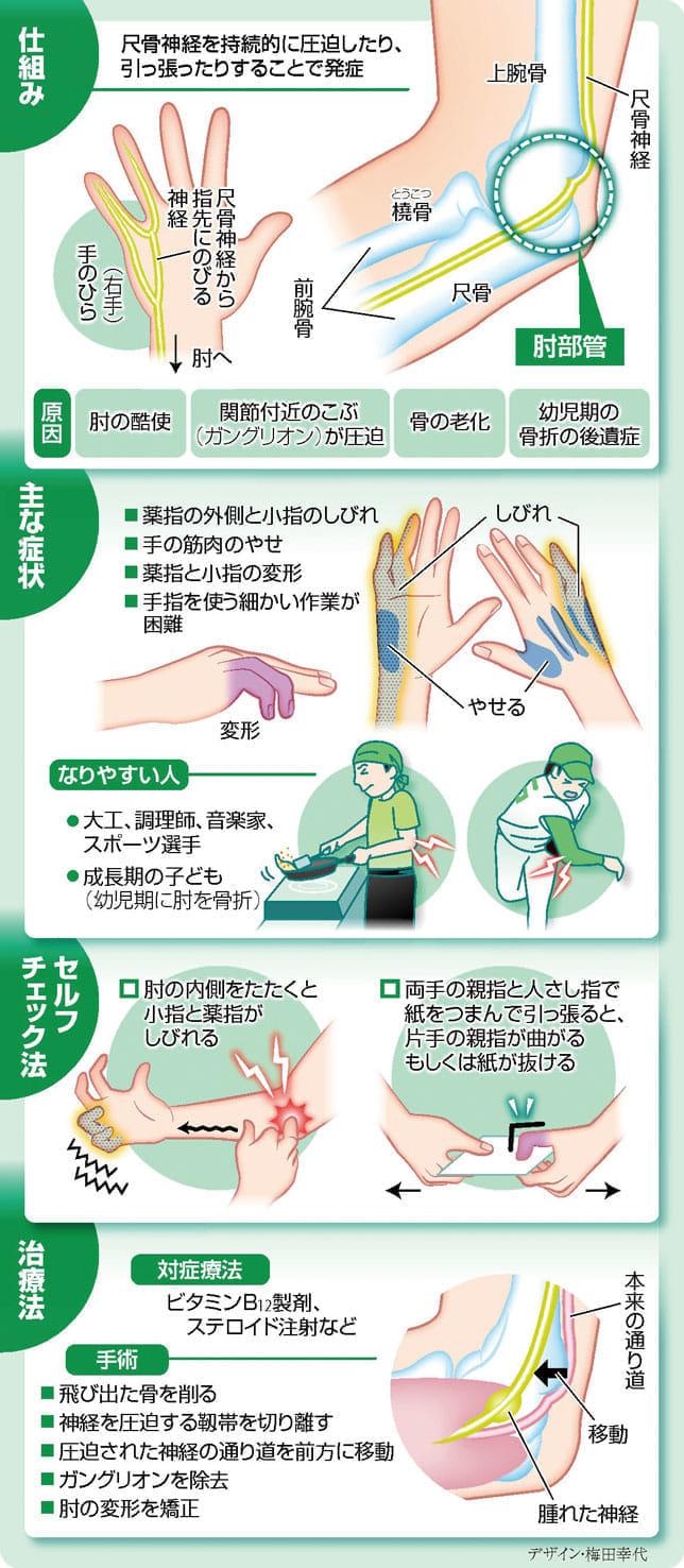 症候群 肘 部 管