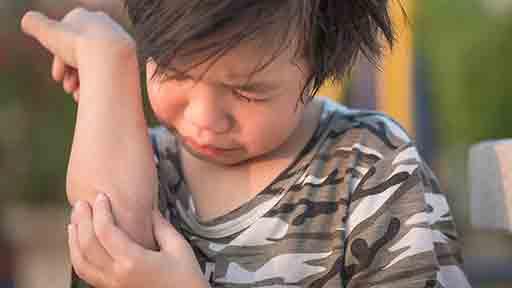 幼児が腕を痛がったら?