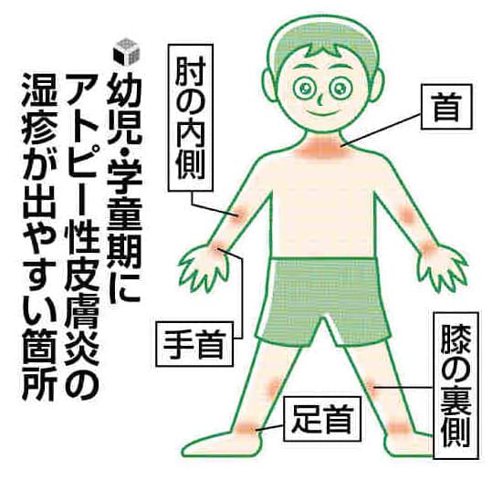 皮膚のトラブル(6)アトピー、感染症併発に注意