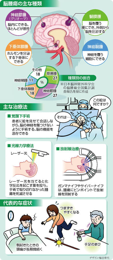 脳腫瘍 悪性でも機能温存し手術…寝起きの頭痛に注意