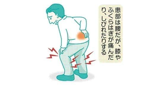 脚の痛み(10)患部は腰の可能性も