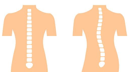 背骨左右に曲がる側彎症…新検査機器で早期発見