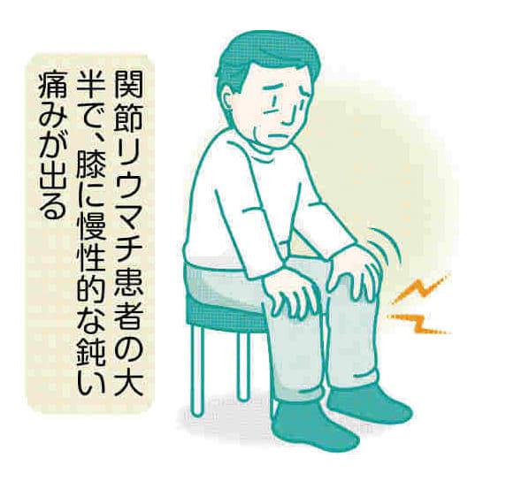 脚の痛み(12)関節リウマチ 薬で進行抑制