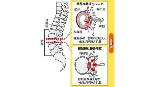 腰痛 排尿障害出たら手術…椎間板ヘルニア 薬を注入する治療も