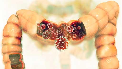 ステージ4大腸がん 「手術せず抗がん剤」が標準治療に JCOG