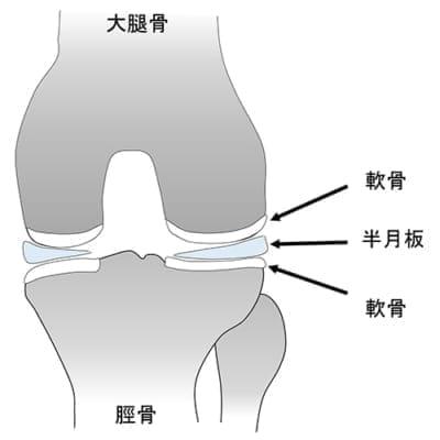 板 板 半月 円 状 膝円板状半月板