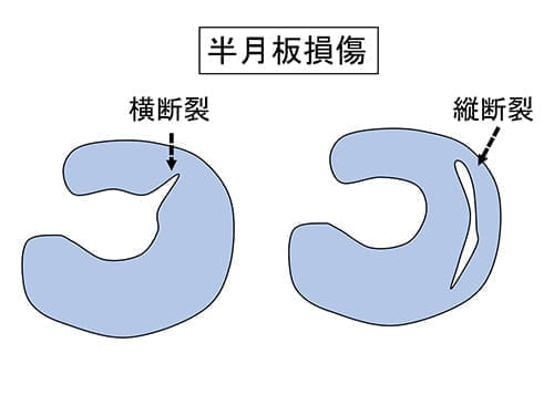 板 板 半月 円 状 円板状半月について