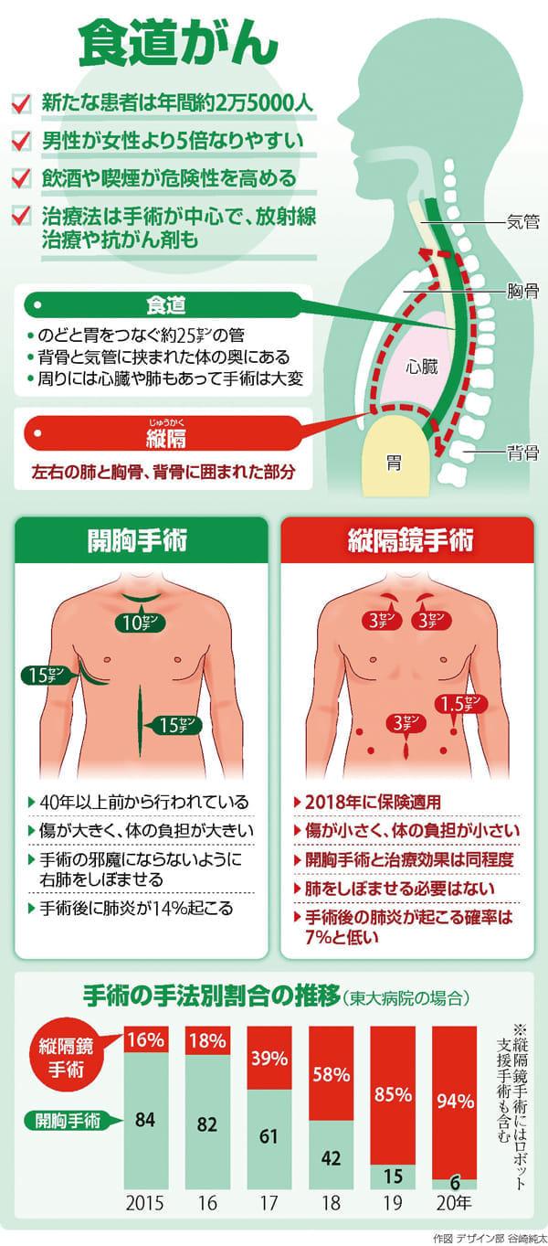 食道がんの縦隔鏡手術…術後の肺炎を抑える