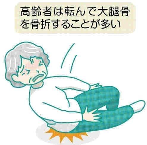 脚の痛み(14)大腿骨の骨折 寝たきりの危険