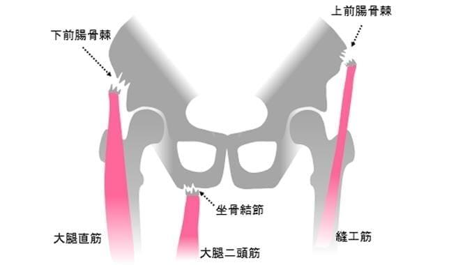 剥離骨折のメカニズム。筋肉の動きに引っ張られて発生