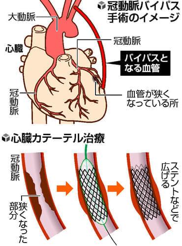 心臓病治療 複数の選択肢… カテーテル 開胸より負担軽く