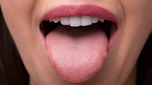 長引く舌の痛みに注意! がんや難病が潜むケースも
