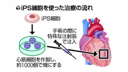 iPS心筋 移植治験へ 夏にも心不全患者に…慶大発の新興企業