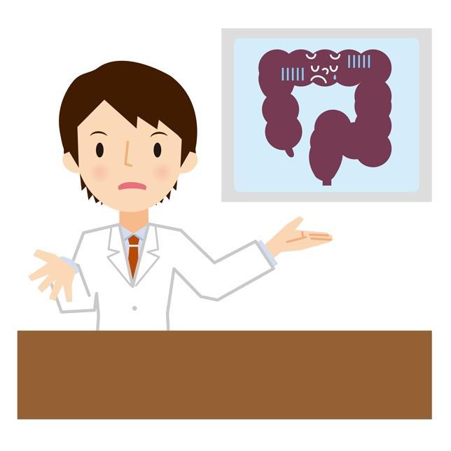 家族性大腸腺腫症 低用量アスピリンで再発予防 大腸全摘に代わるがん予防の選択肢に