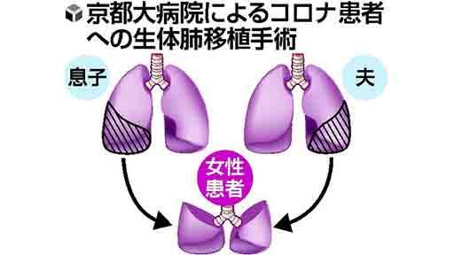 コロナ後遺症 生体肺移植…京大病院 世界初 夫と息子が提供