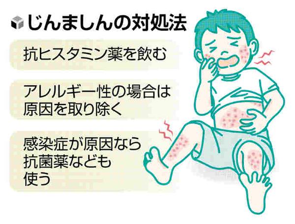 皮膚のトラブル(14)「エビを食べた直後に発疹」…じんましんにはアレルギー性も