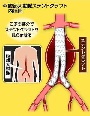 腹部大動脈瘤 増える血管内治療…人工血管置換術も選択肢