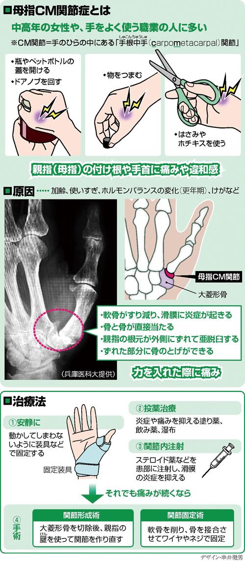 母指CM関節症…軟骨すり減り 力入らず