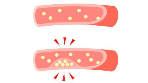 遺伝絡む家族性高コレステロール血症…早めに動脈硬化抑制