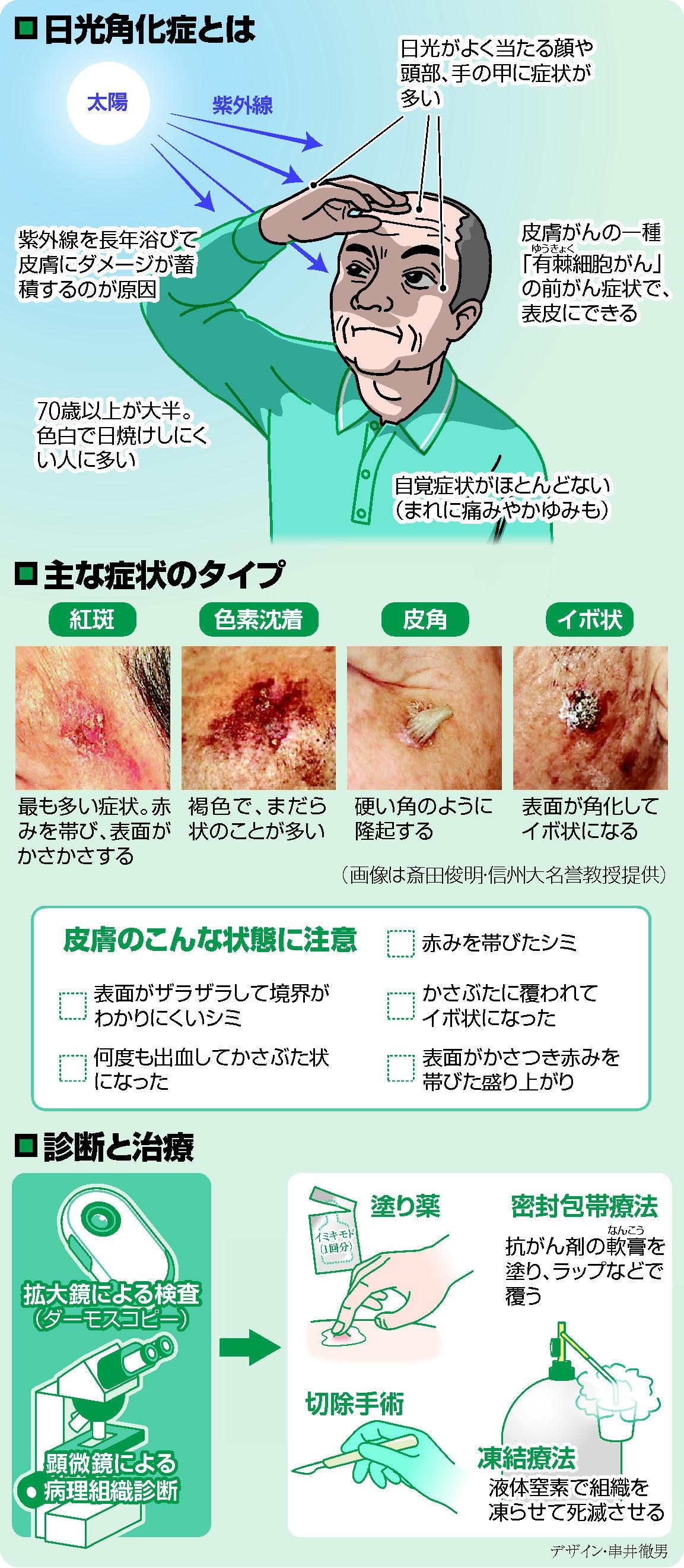 「日光角化症」皮膚がんに進行も…若い時から紫外線防ぐ