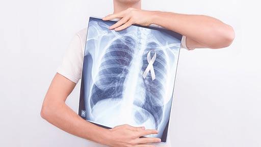 非喫煙女性の肺がん危険因子とは 多目的コホート研究JPHC Study