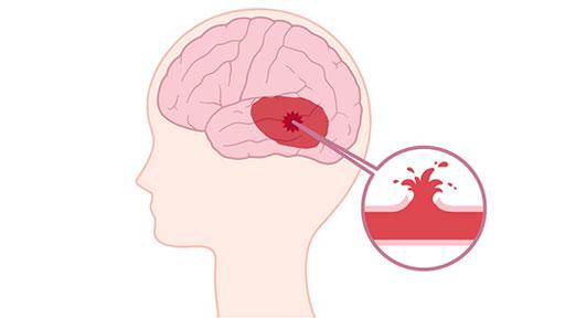 強迫性障害で虚血性脳卒中の発症リスク3倍